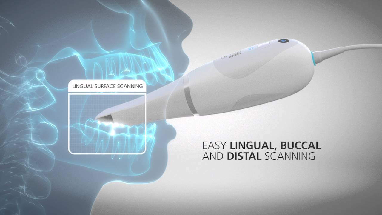 Intraoralscanner_Carestream